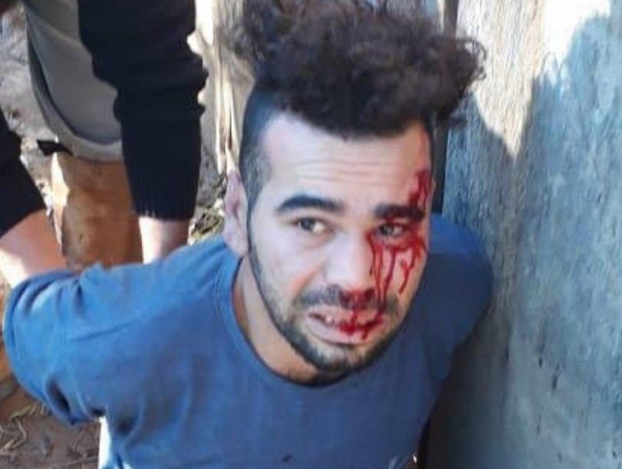 Surge pista sobre jovem torturado por milícia em Sapiranga - Jornal VS